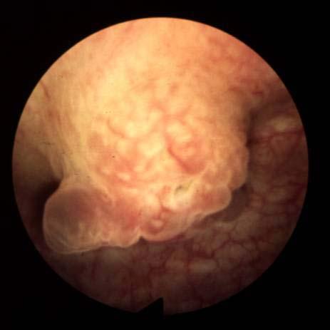Риск развития рака мочевого пузыря