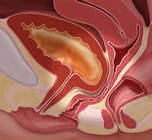 Цистоцеле - это опущение мочевого пузыря