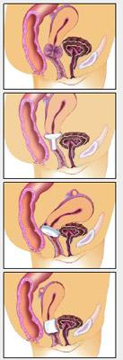 Лечение пролапса органов малого таза