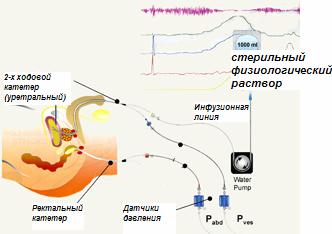 В ходе исследования мочевой пузырь медленно наполняется стерильным физиологическим раствором