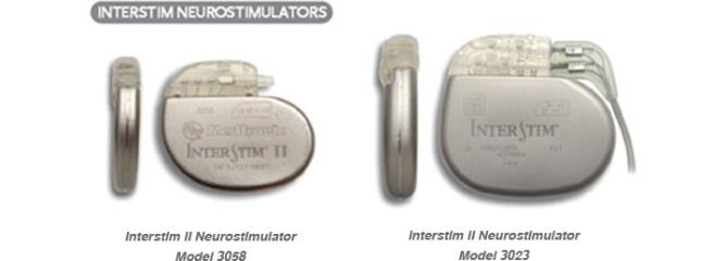 Суть лечения заключается в имплантации генератора, который будет стимулировать сакральные нервы путем слабых электрических импульсов