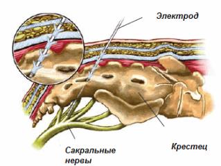в непосредственной близости от сакральных нервов устанавливается электрод