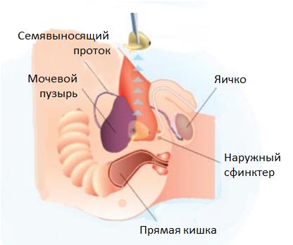 Предстательная железа у мужчин рак 4 степени