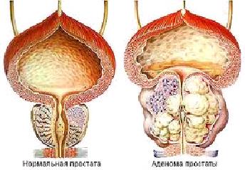 Трансуретральная электрорезекция предстательной железы фото